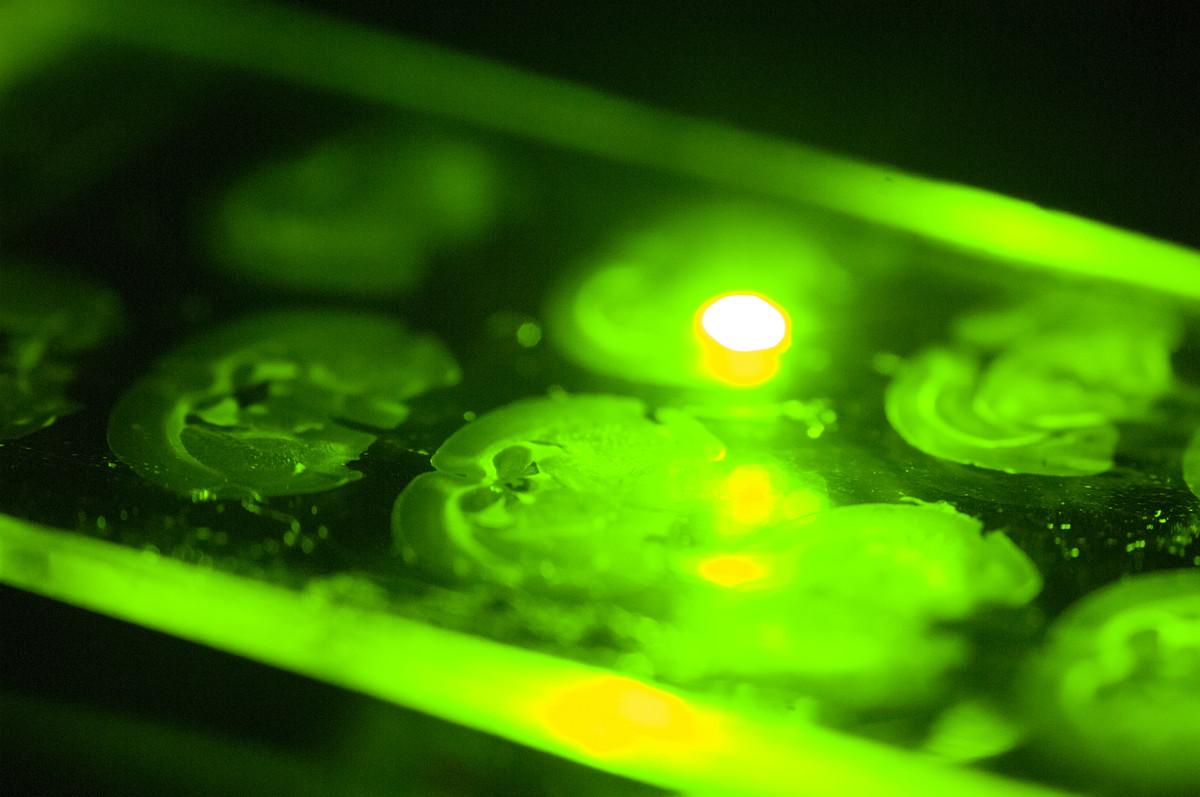 Slide under microscope in Friedman lab, Photo credit Zach Veilleux